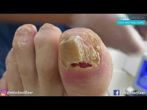 Ногти больные на ногах