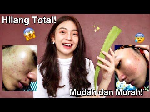 jerawat #acne #atasijerawat #lebaran #hariraya #makeup #idulfitri #tutorial #beautytips #drshindy #puasa #sahur #dirumahaja....