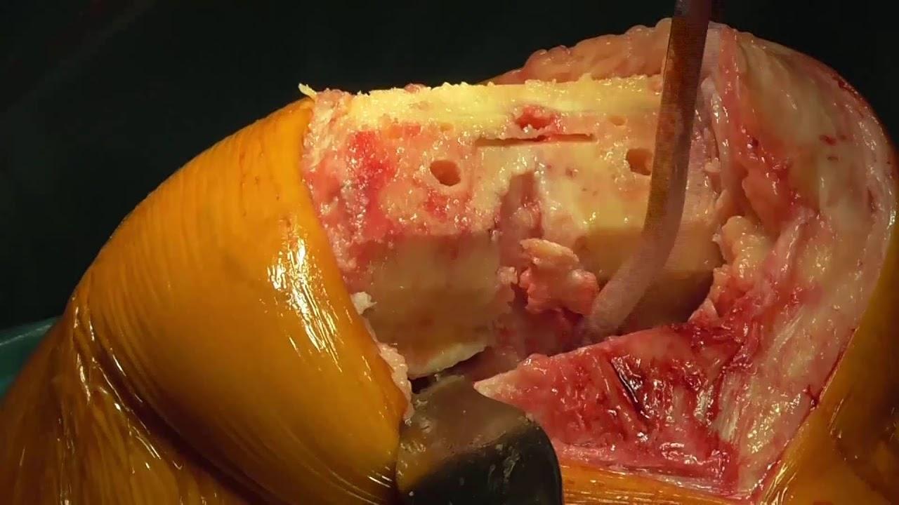 femoropatelární artróza