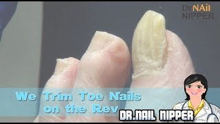 We Trim Toe Nails on