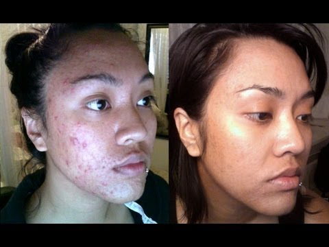 REAL ACNE TRANSFORMATION: How I CLEARED My skin with no pills