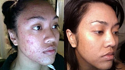 hqdefault - Antihistamine Cream For Acne
