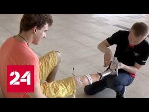 Современные бионические протезы получат дети из Беларуси - YouTube