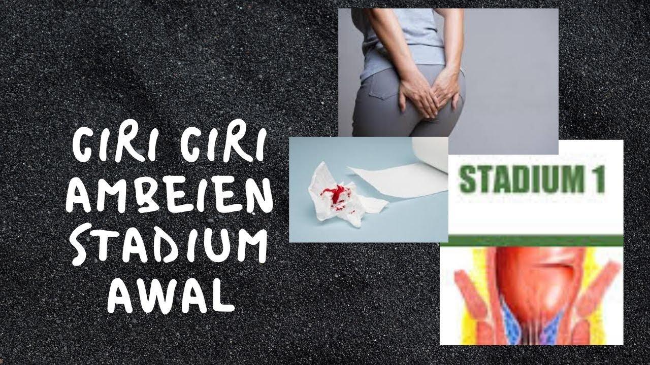 Ciri Ciri ambeien stadium awal - YouTube