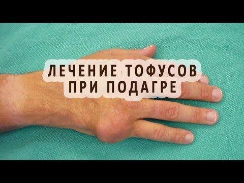 Лечение тофусов при подагре