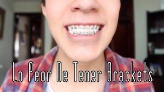 LO PEOR DE TENER BRACKETS | Richard Salazar Barona