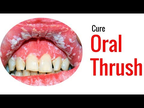 just-apply-this-nautral-cure-home-remedies-for-oral-thrush