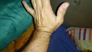 Imediato na inchaço após mão lesão