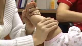 Desiguales recién nacido piernas