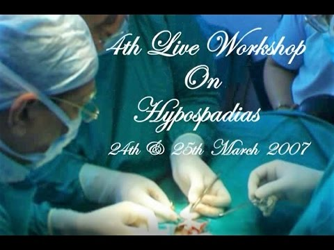 DAY ONE  Case 5  Scrotal Hypospadias With Severe Chordee - First Stage Repair