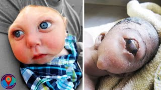 10 Most Unusual Babies in the World