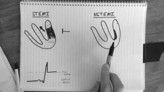 ST-segment changes in STEMI & NSTEMI explained