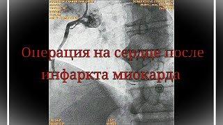 Операция стентирование после инфаркта миокарда / Heart surgery after myocardial infarction