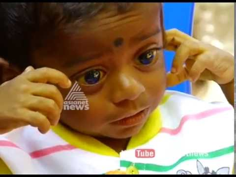 14 Month old baby seeks financial aid for Liver transplant Surgery