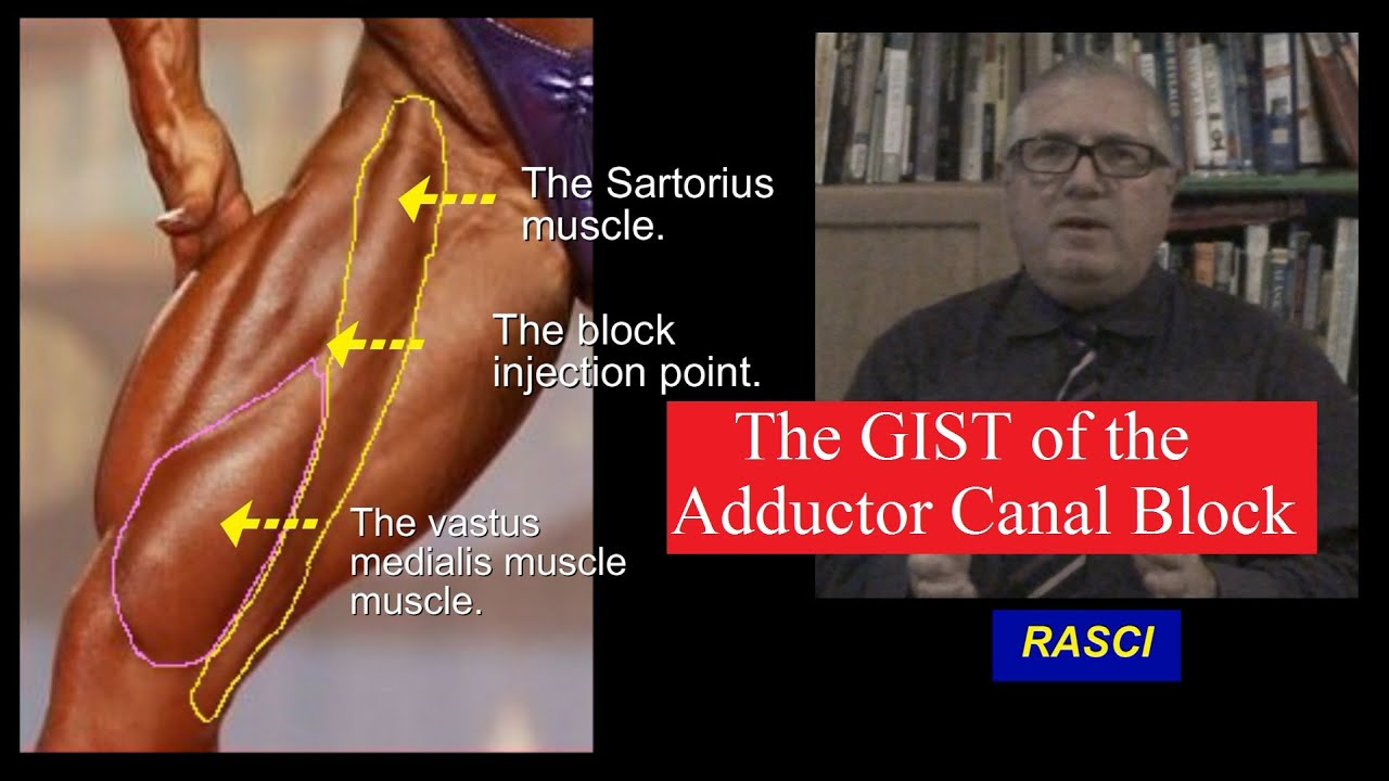 The GIST of the Adductor canal block - YouTube