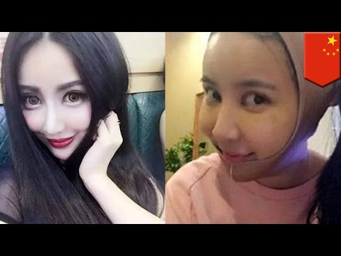 Plastic surgery gone wrong: Chinese girl Yu Bing has operations to look like Fan Bingbing - TomoNews