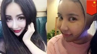 Plastic Surgery Gone Wrong Chinese Girl Yu Bing Has Operations Look Fan Bingbing