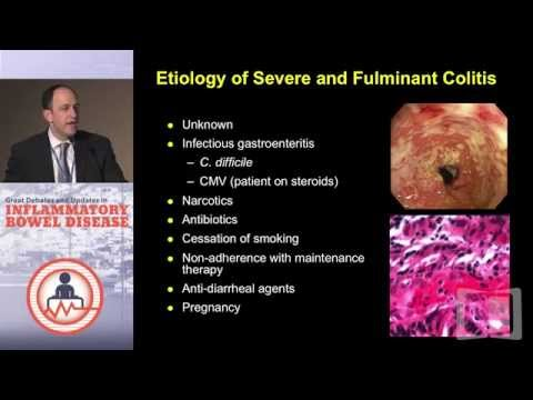 Treatment Strategies for the Acute Severe Ulcerative Colitis Patient