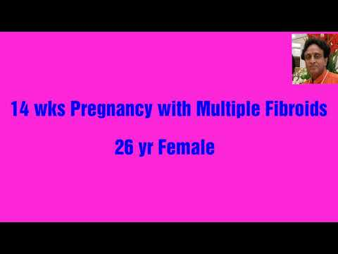 Fibroids in Pregnancy on Ultrasound, know and avoid complications to fetus and mother