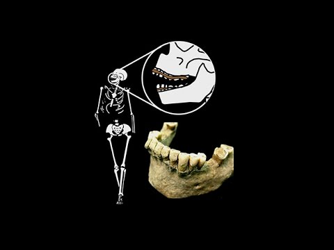 CARTA: Ancient DNA and Human Evolution – Prehistoric Human Biology as Inferred from Dental Calculus