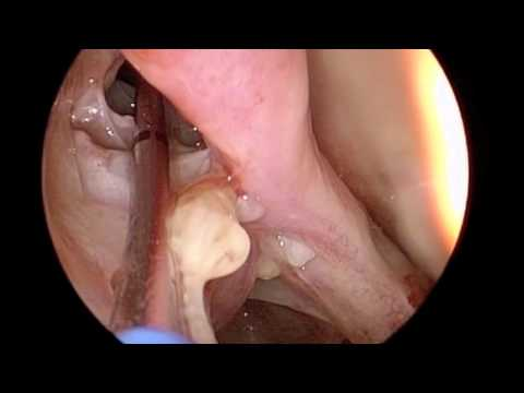Frontal Sinus Balloon Dilation with XprESS