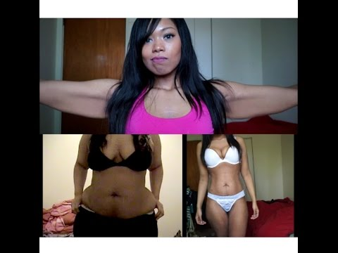 Loose Skin after 150 Pound Weight Loss RAW!