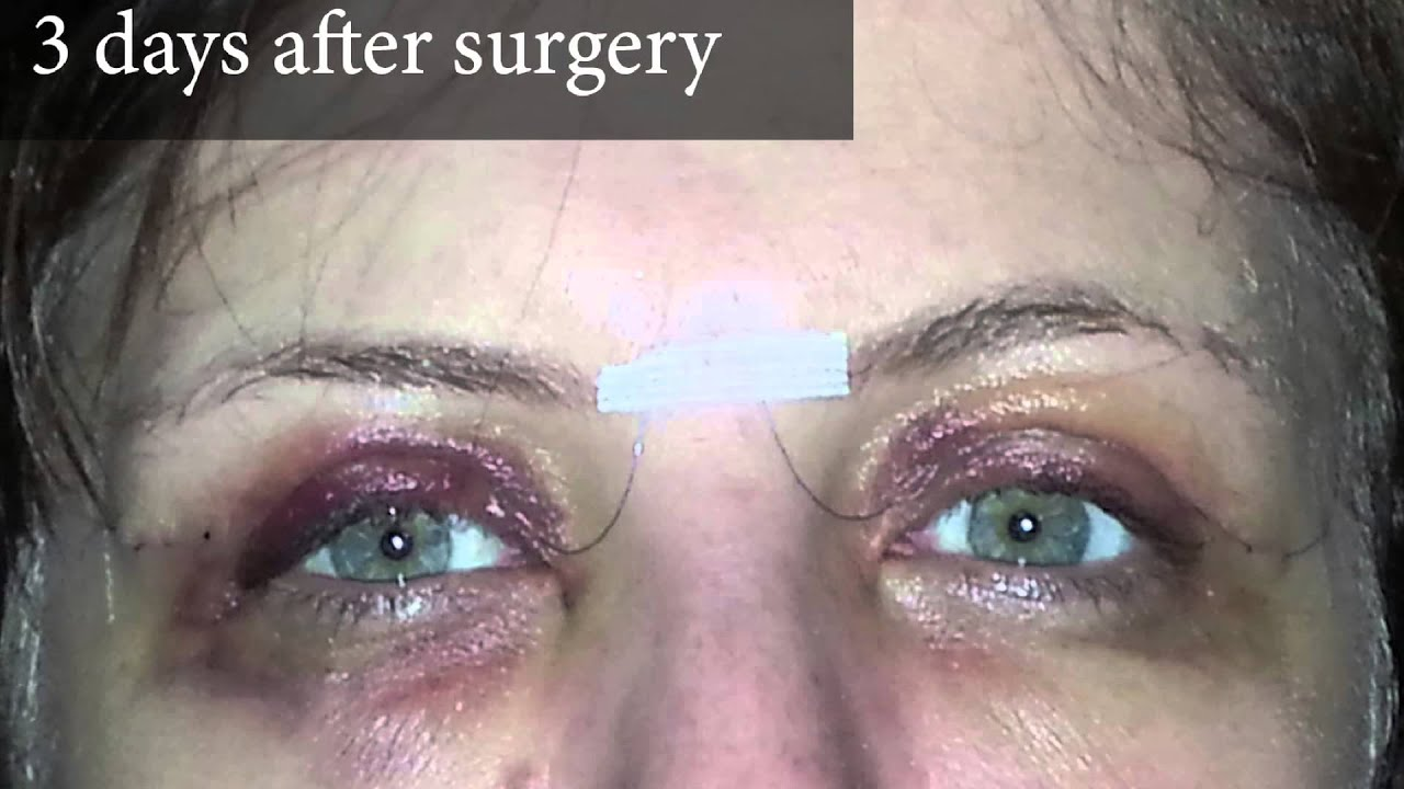 Upper Eyelid Surgery Photos Of A Real Patient And Account Three Days After You