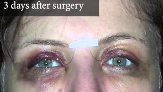 Upper Eyelid Surgery Photos of a Real Patient and Video Account of Three Days After Surgery Thumbnail