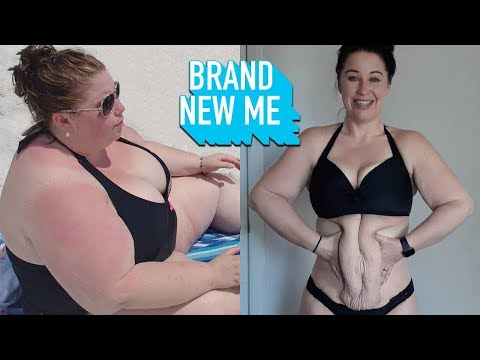 i-lost-230lbs-but-can-surgery-fix-my-excess-skin?-|-brand-new-me