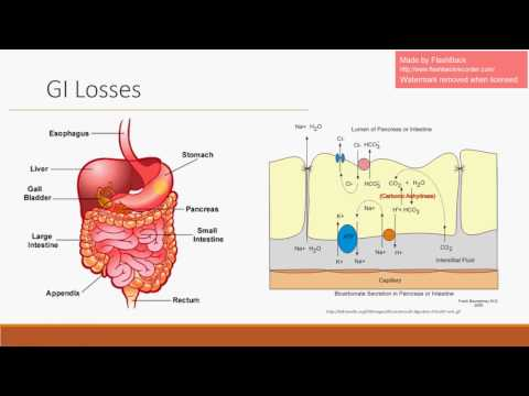 Non-Anion Gap Metabolic Acidosis - GI/GU Losses (See Updated Video)