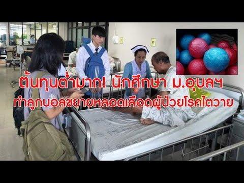 เจ๋ง!นศ.ม.อุบลฯทำลูกบอลจากยางพาราขยายหลอดเลือดผู้ป่วยไตวาย-หลอดเลือดตีบ