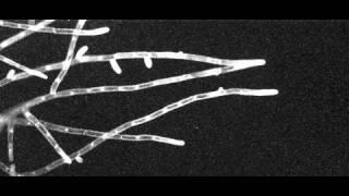 ヒメツリガネゴケの原糸体が伸びていく様子