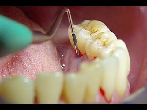 Периодонтит. Как не потерять зуб?!