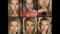 hqdefault - V Beam Laser Acne Scars Review