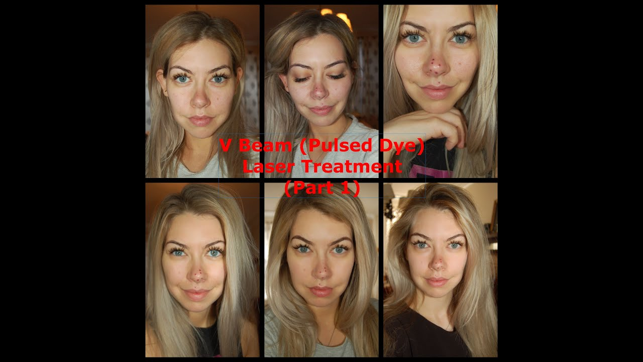 V Beam Laser Treatment Results Part 2 Youtube