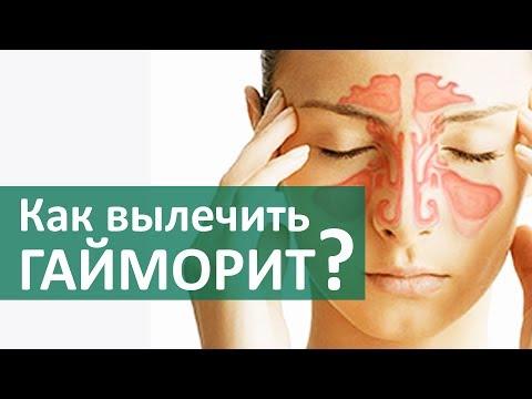 Лечение гайморита без прокола - 2 метода
