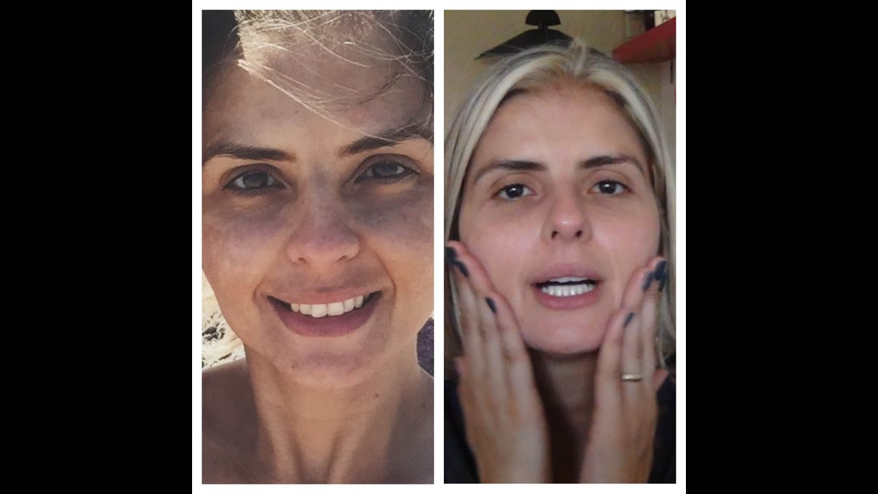 Top Meu tratamento contra manchas no rosto!!! - YouTube SR42
