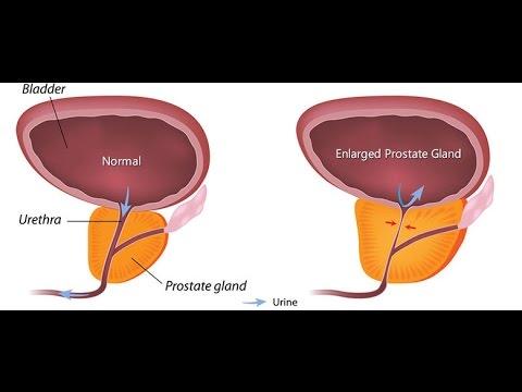 hypertrophie b nigne de la prostate ou adenome de la. Black Bedroom Furniture Sets. Home Design Ideas