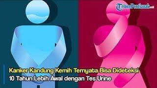 dr. H. Deddy Rasyidan Yulizar, Sp.U - Tumor Kandung Kemih.