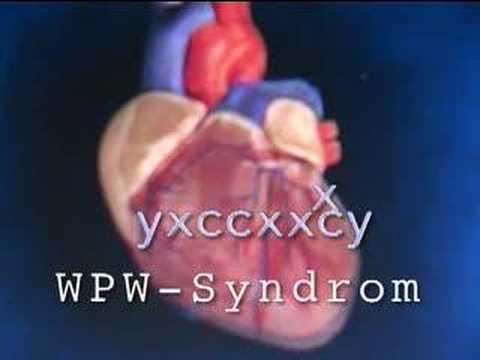 Wanhoffs Wunderbare Welt der Wissenschaft - WPW-Syndrom - YouTube
