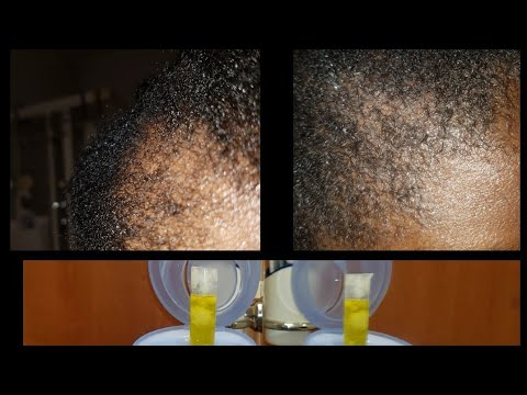 Hot oil treatment to Regrow hair fall ,dry scalp, itching,irritatino by alopecia areata.