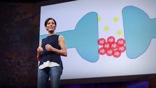 видео Болезнь Альцгеймера: передается по наследству? какие симптомы болезни альцгеймера?