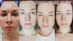 My Acne Video Diary ♡ The Journey to Fixing my Skin