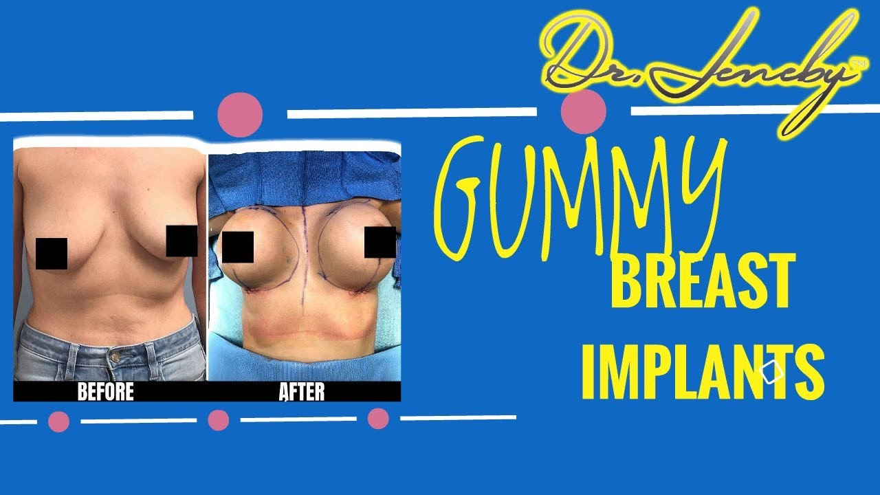 Gummy Breast Implants - Best Type Of Breast Implants -1821