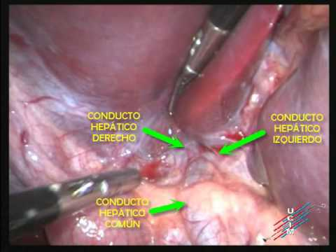 Anatomía Laparoendoscópica de la vía biliar extrahepática - YouTube
