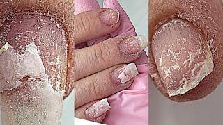 Очень сложные скрученные ногти Огромные валики Пальцы Сухари Маникюр