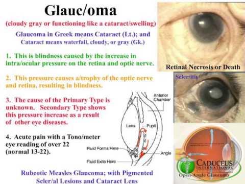 glaucoma - youtube, Skeleton