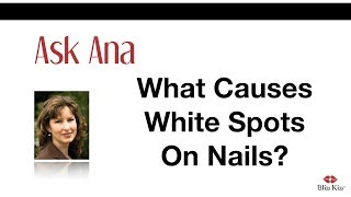 Ask Ana: What Causes White Spots On Nails?