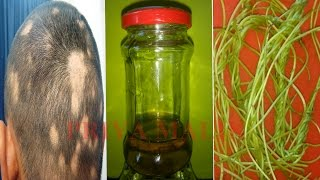 CURE BALDNESS PERMANENTLY || HOME REMEDIES FOR BALDNESS, HAIR LOSS, ALOPECIA-REGROW HAIR