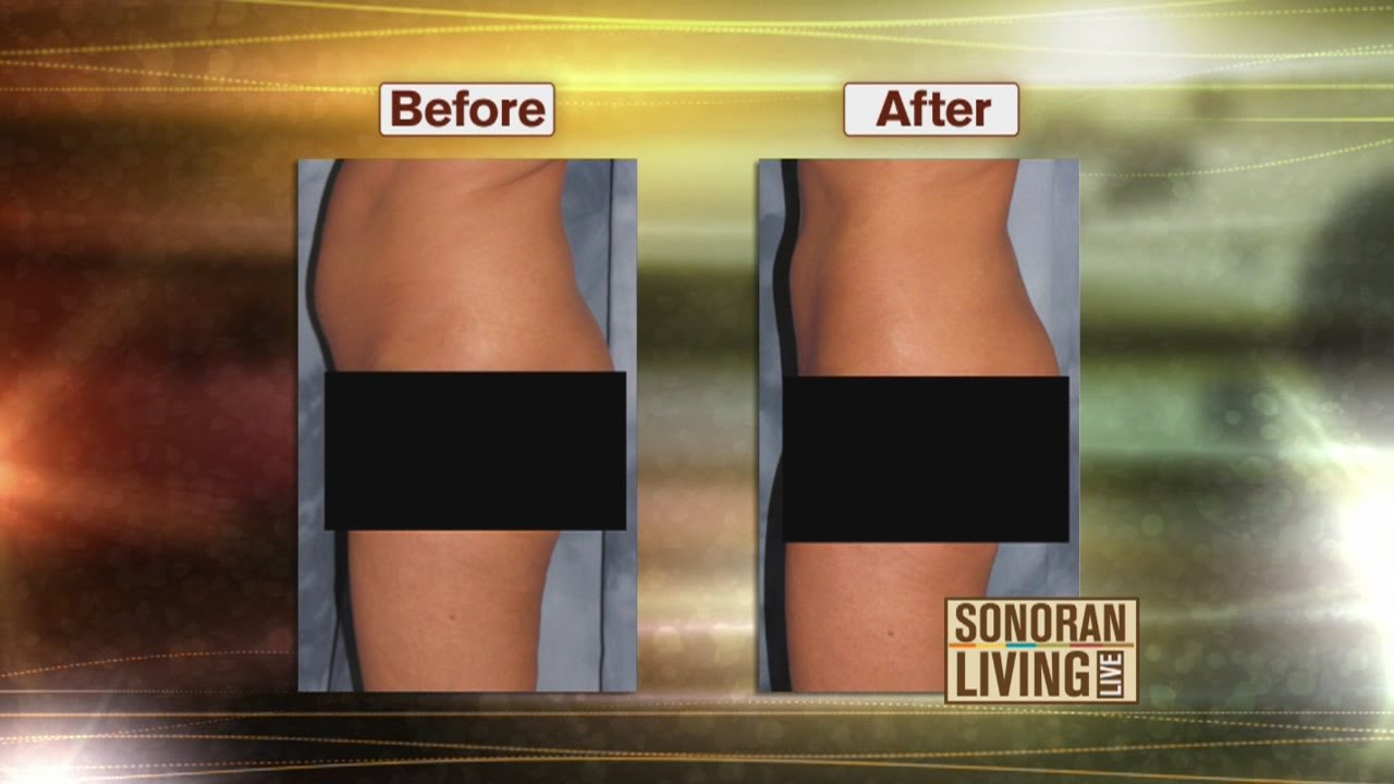 Tummy tuck or lipo: Which is best for you?